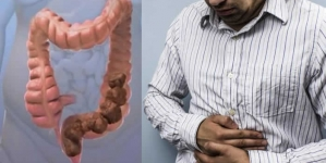What Causes Constipation? 12 Surprising Reasons You're Constipated