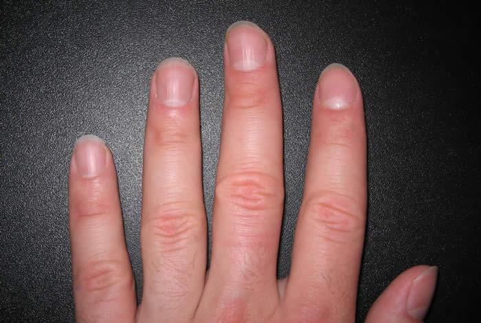 Men's Nail Care