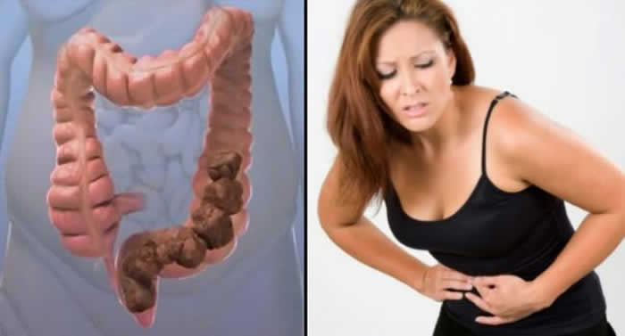 12 Surprising Reasons You're Constipated