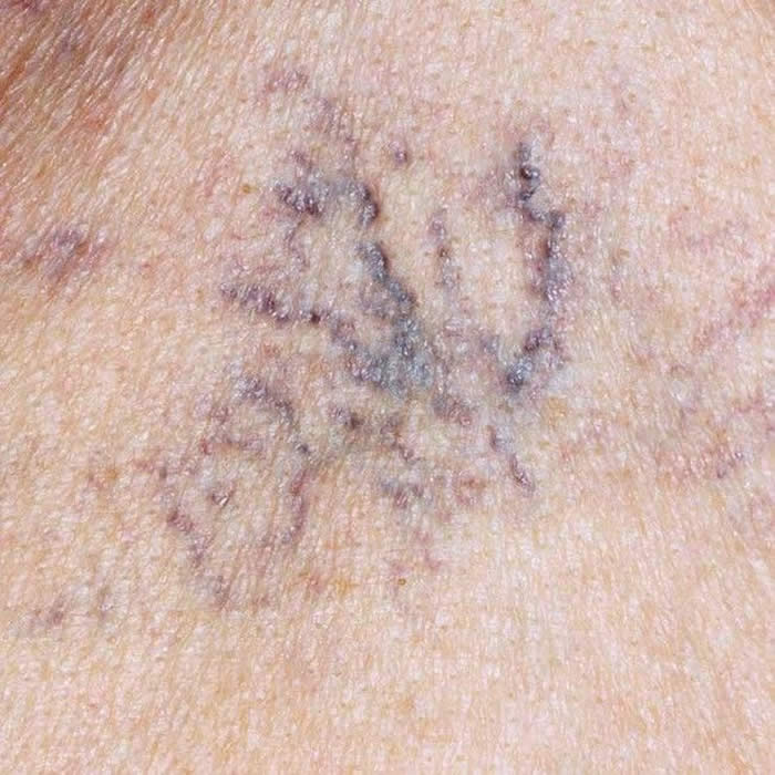 Emergence of spots on the skin