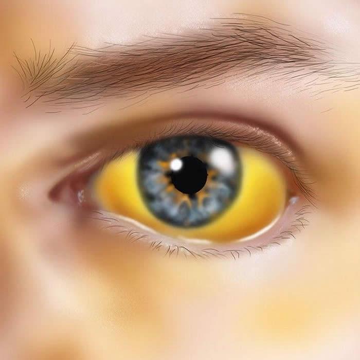 Jaundice or Yellowy eyes & Skin