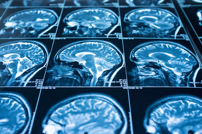 The ketogenic diet protects your brain